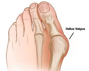 Остеопатия стопы Hallux Valgus