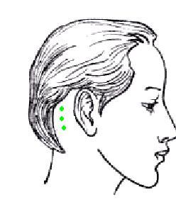 Лечение мигрени и головных болей пиявками