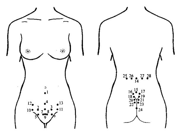 Точки постановки пиявок при лечении аденомиоза матки